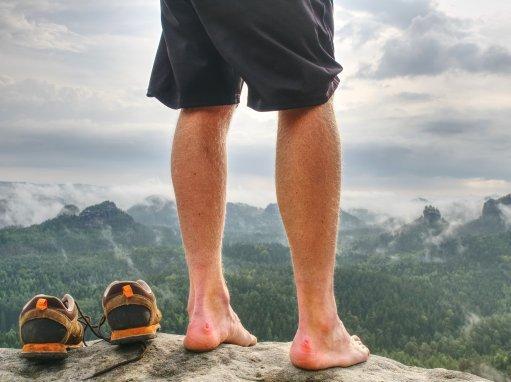 blog - Starostlivosť o nohy počas pochodu